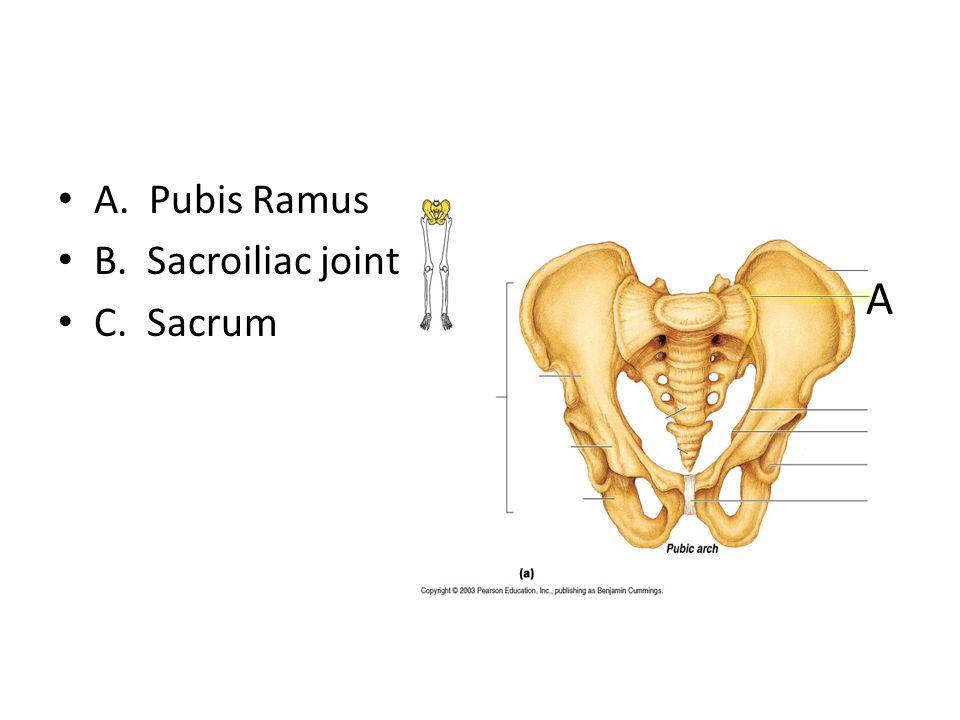 A. Pubis Ramus B. Sacroiliac joint C. Sacrum A