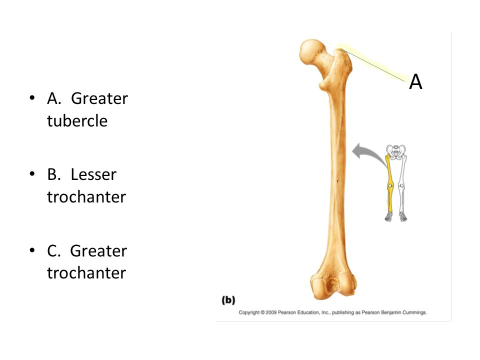 A. Greater tubercle B. Lesser trochanter C. Greater trochanter A