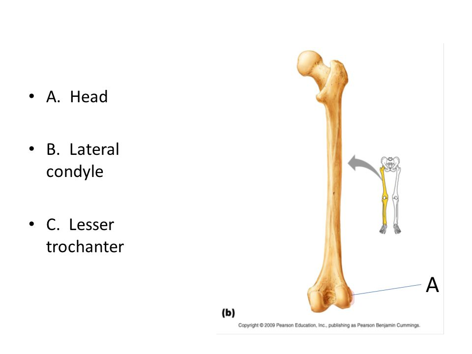 A. Head B. Lateral condyle C. Lesser trochanter A