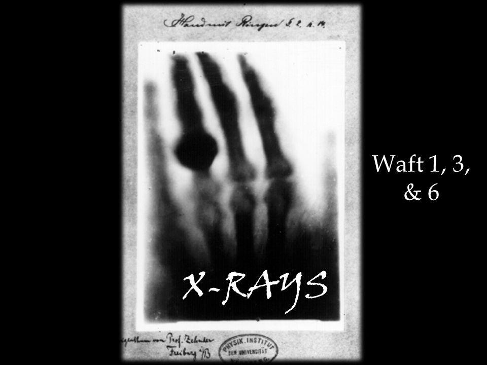 X-RAYS Waft 1, 3, & 6