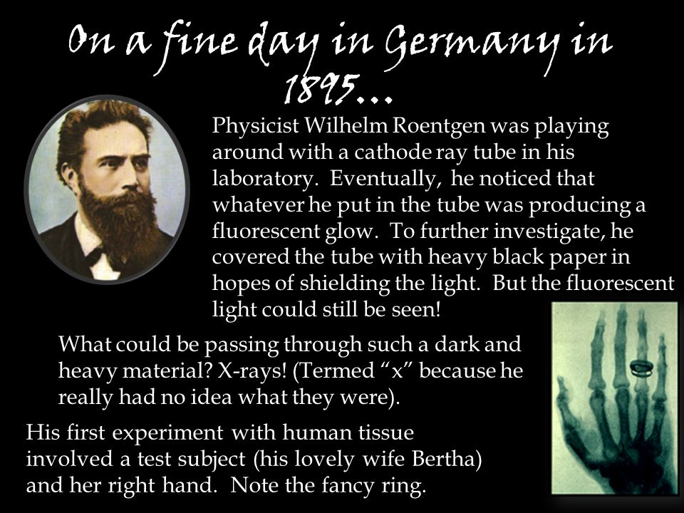 On a fine day in Germany in 1895… His first experiment with human tissue involved a test subject (his lovely wife Bertha) and her right hand.