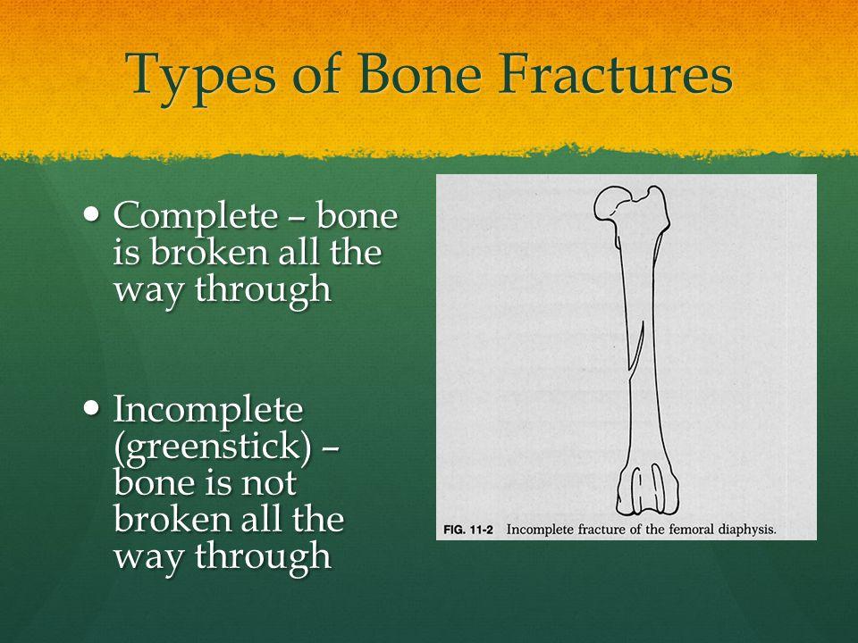Types of Bone Fractures Complete – bone is broken all the way through Complete – bone is broken all the way through Incomplete (greenstick) – bone is