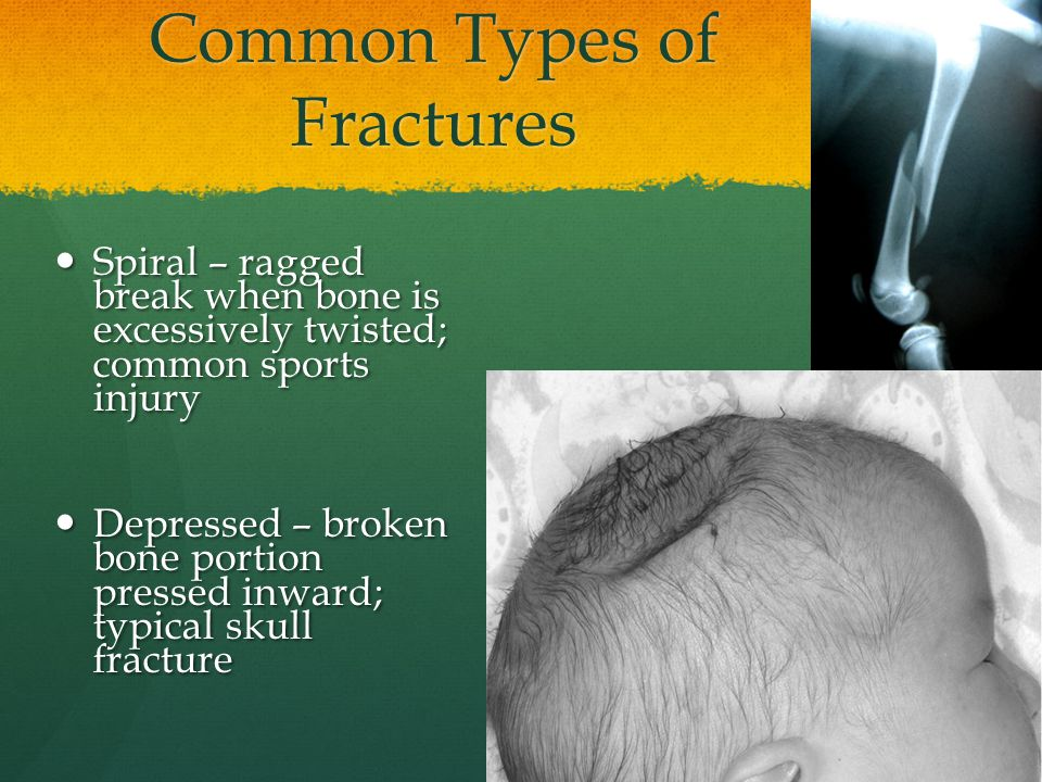 Common Types of Fractures Spiral – ragged break when bone is excessively twisted; common sports injury Spiral – ragged break when bone is excessively