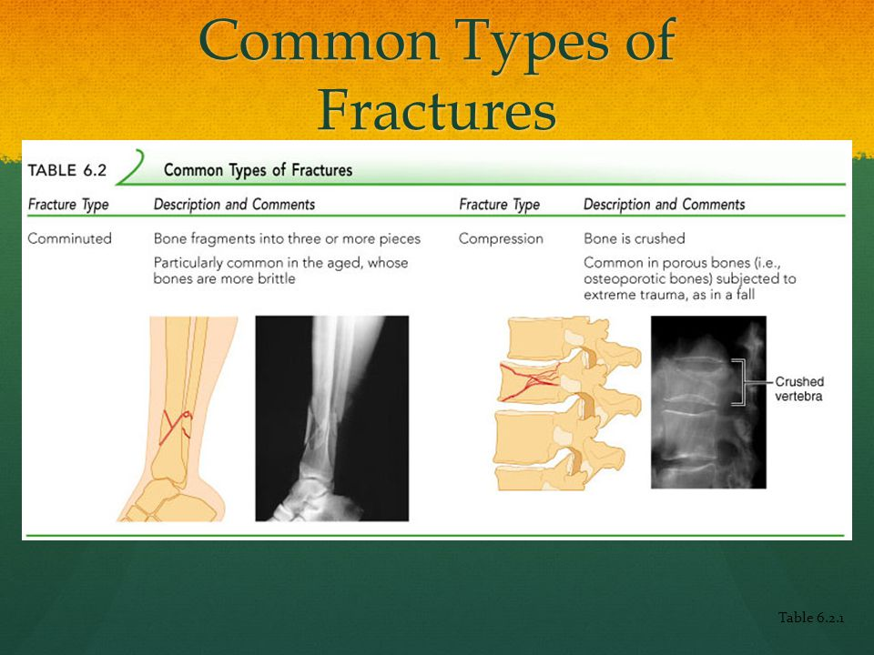 Common Types of Fractures Table 6.2.1