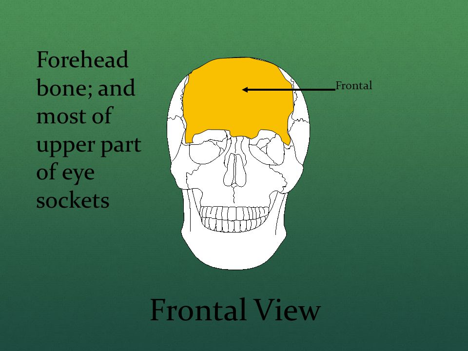 Frontal Frontal View Forehead bone; and most of upper part of eye sockets