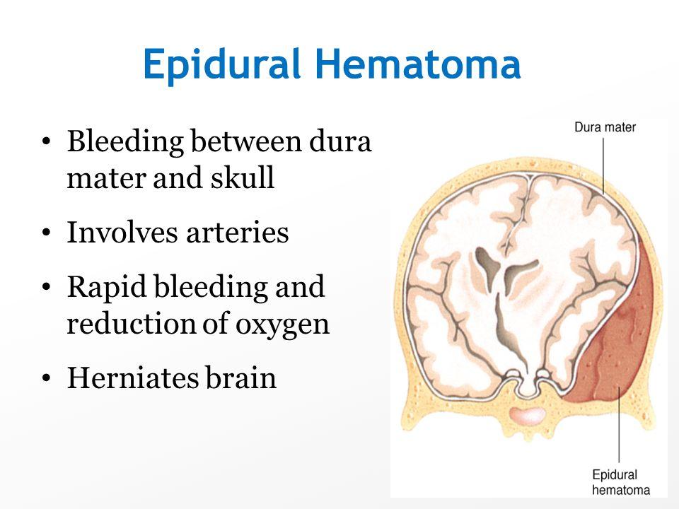 Epidural Hematoma Bleeding between dura mater and skull Involves arteries Rapid bleeding and reduction of oxygen Herniates brain