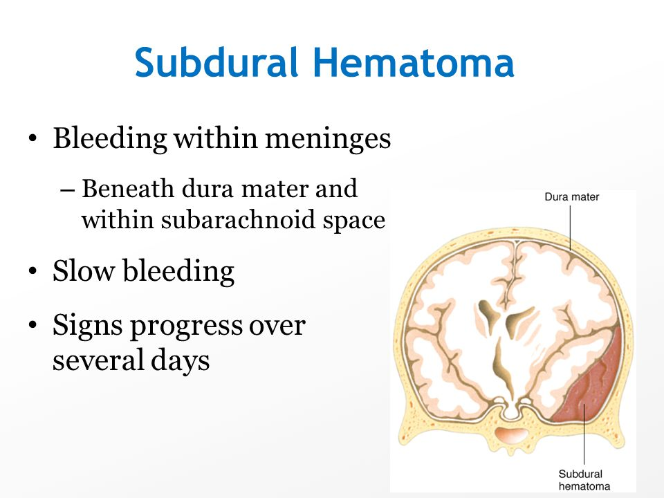 Subdural Hematoma Bleeding within meninges – Beneath dura mater and within subarachnoid space Slow bleeding Signs progress over several days