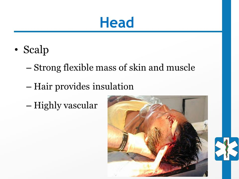 Head Scalp – Strong flexible mass of skin and muscle – Hair provides insulation – Highly vascular