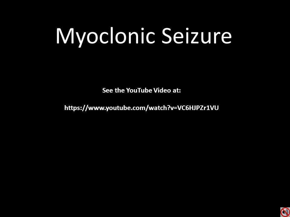 Myoclonic Seizure See the YouTube Video at: https://www.youtube.com/watch?v=VC6HJPZr1VU