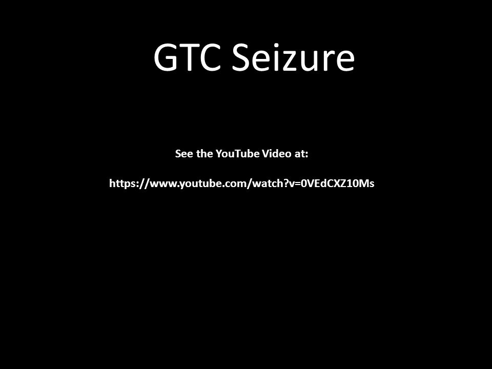 GTC Seizure Sound See the YouTube Video at: https://www.youtube.com/watch?v=0VEdCXZ10Ms