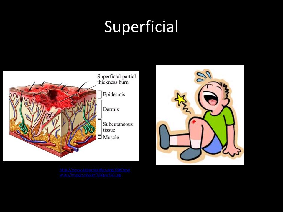 Superficial http://www.azburncenter.org/site/reso urces/images/superficialpartial.jpg