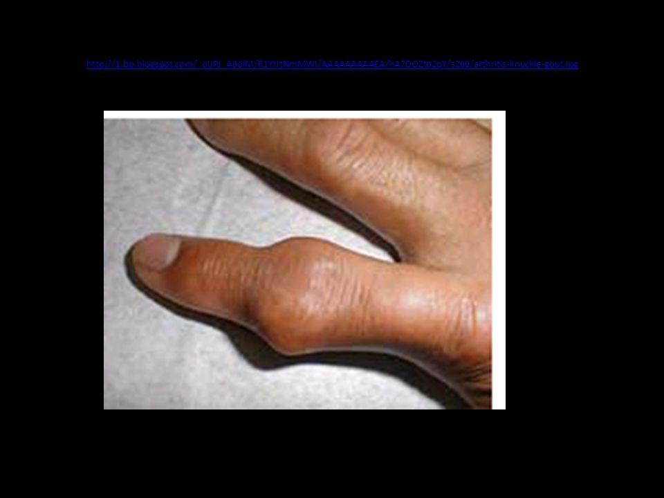 http://1.bp.blogspot.com/_oIJPJ_A0dlM/R1YtItNmMWI/AAAAAAAAAEA/hA7DOZto2pY/s200/arthritis-knuckle-gout.jpg