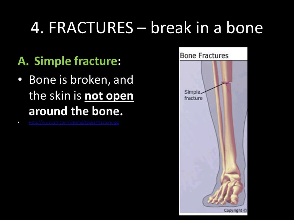4. FRACTURES – break in a bone A.Simple fracture: Bone is broken, and the skin is not open around the bone. Http://www.ghi.com/webmd/topics/fracture.j