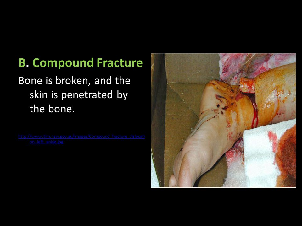 B. Compound Fracture Bone is broken, and the skin is penetrated by the bone. http://www.itim.nsw.gov.au/images/Compound_fracture_dislocati on_left_ank