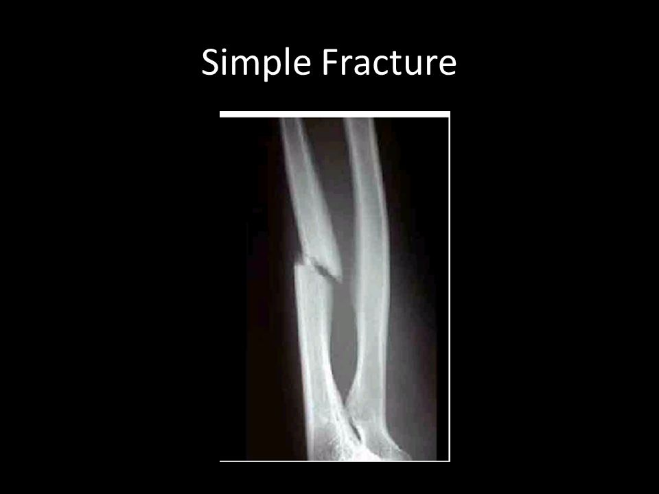 Simple Fracture