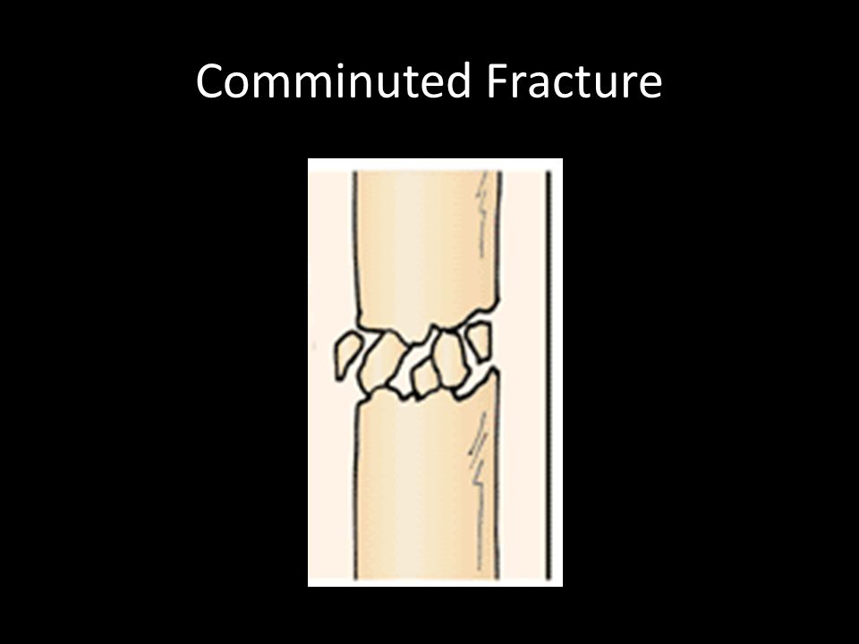 Comminuted Fracture