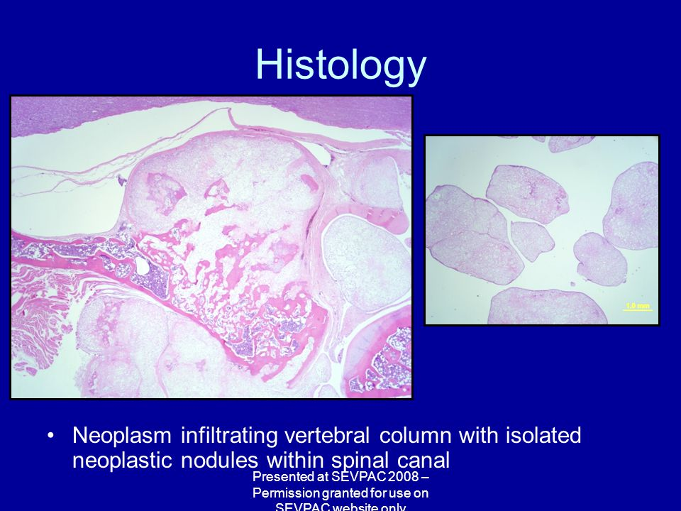 Histology Neoplasm infiltrating vertebral column with isolated neoplastic nodules within spinal canal Presented at SEVPAC 2008 – Permission granted for use on SEVPAC website only