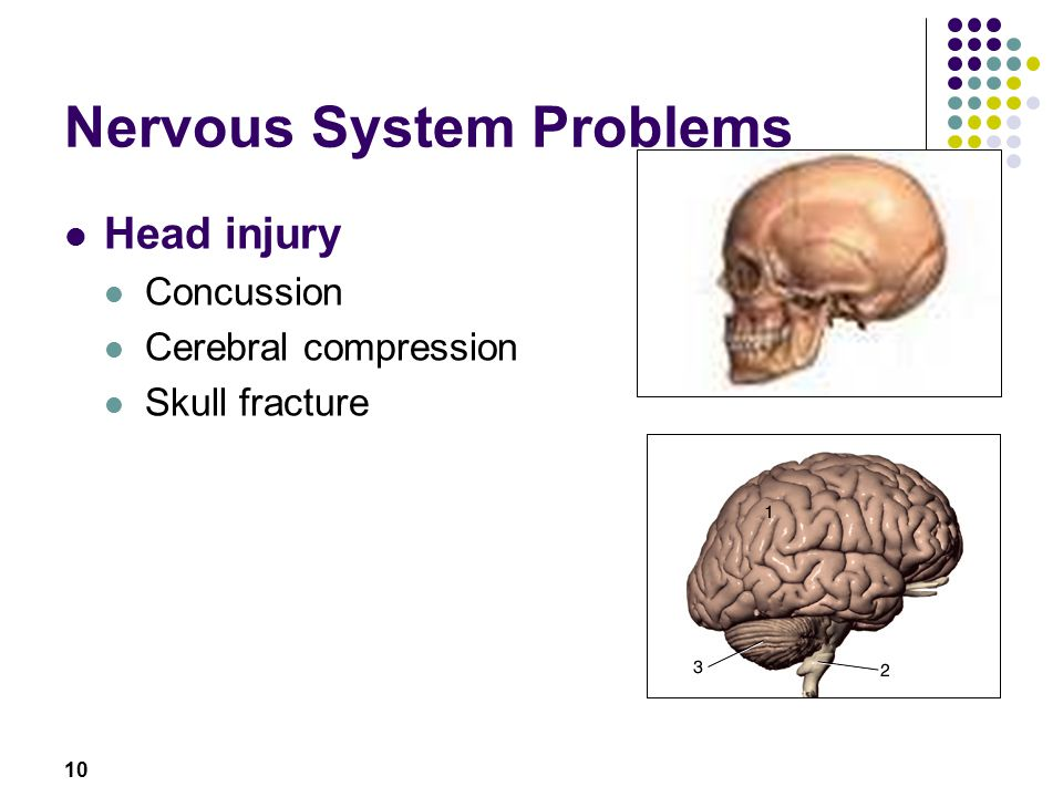 10 Nervous System Problems Head injury Concussion Cerebral compression Skull fracture