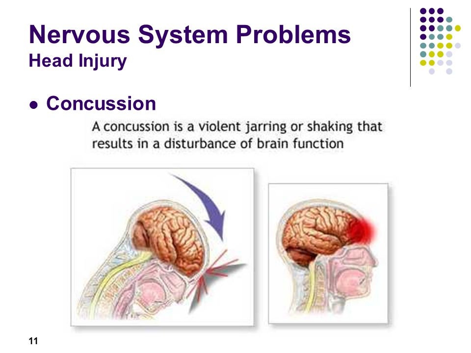 11 Nervous System Problems Head Injury Concussion