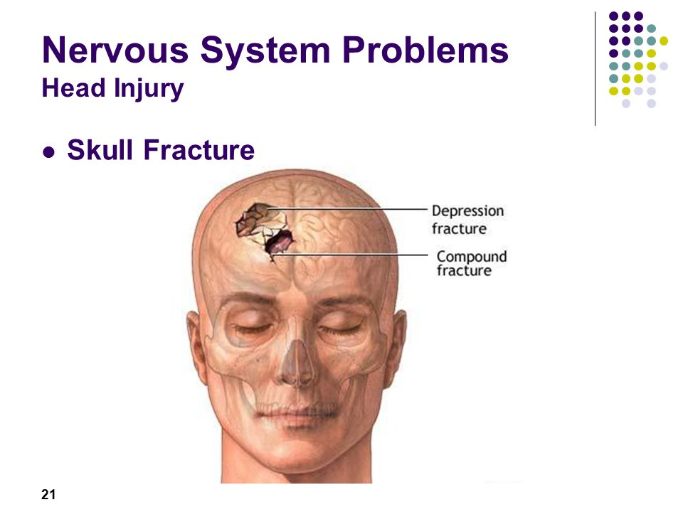 21 Nervous System Problems Head Injury Skull Fracture