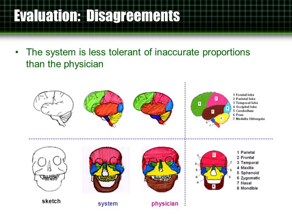 Evaluation: Disagreements The system is less tolerant of inaccurate proportions than the physician sketch systemphysician