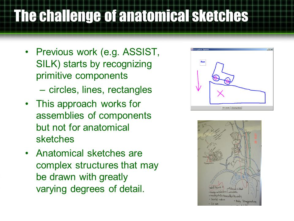 Sketch Recognition By convention, 2-D depictions of anatomy are drawn from one of eight standard views.