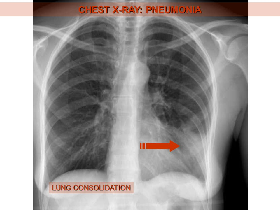CHEST X-RAY: LEFT-SIDED HEART FAILURE KERLEY´S LINES HEART ENLARGEMENT DILATED LUNG HILUM