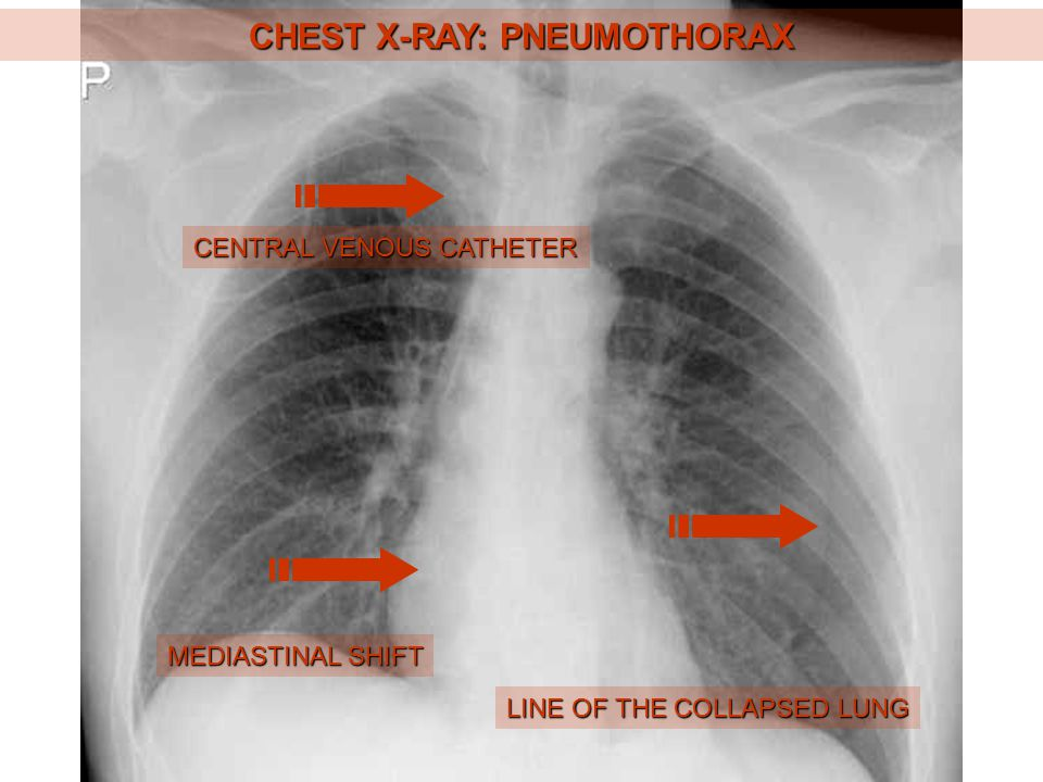 ABDOMINAL X-RAY: SMALL BOWEL OBSTRUCTION BOWEL DISTENSION LEVELS
