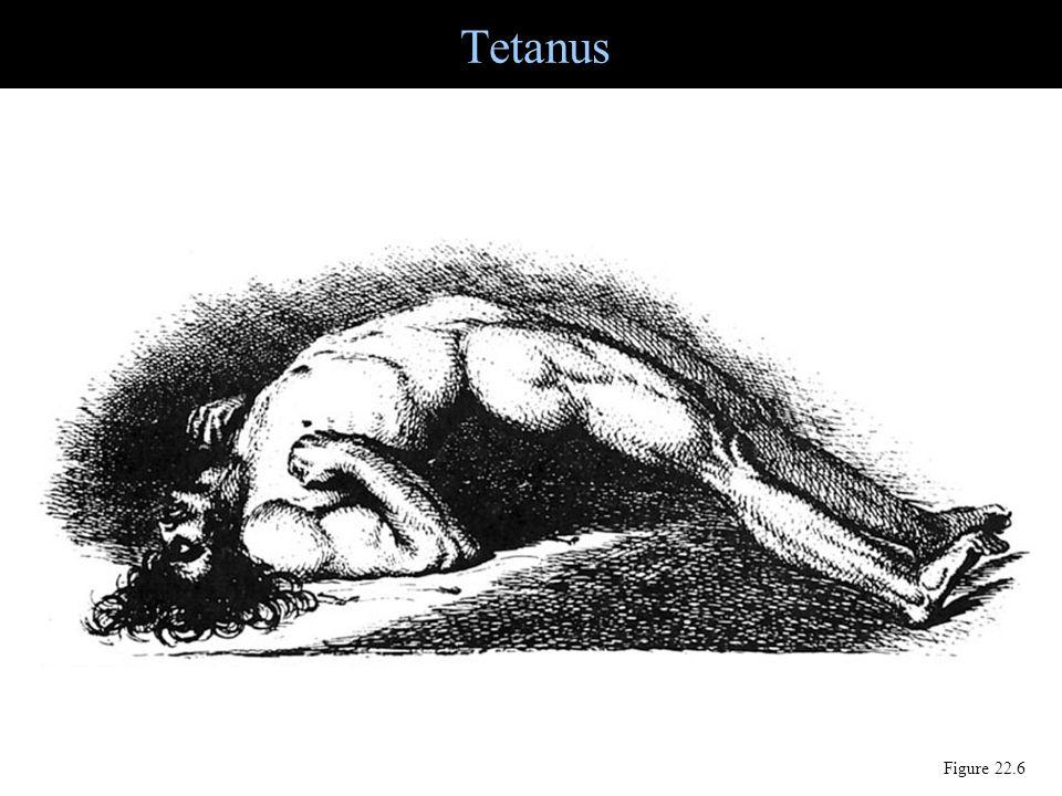 Tetanus Figure 22.6