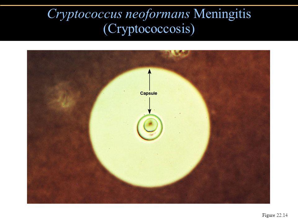 Cryptococcus neoformans Meningitis (Cryptococcosis) Figure 22.14