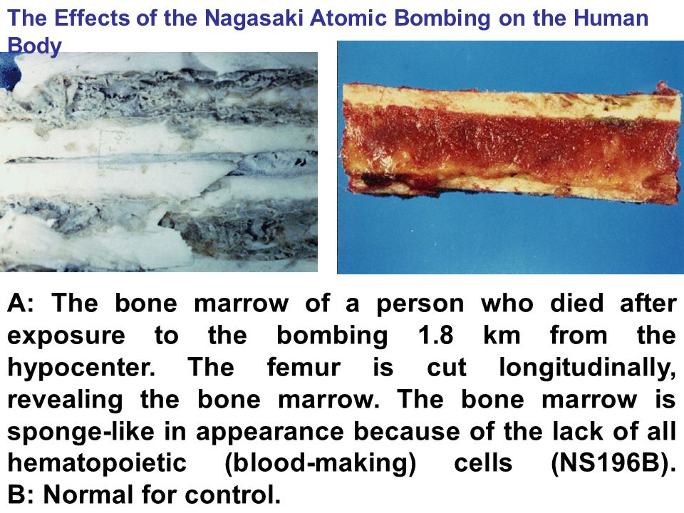 A: The bone marrow of a person who died after exposure to the bombing 1.8 km from the hypocenter. The femur is cut longitudinally, revealing the bone