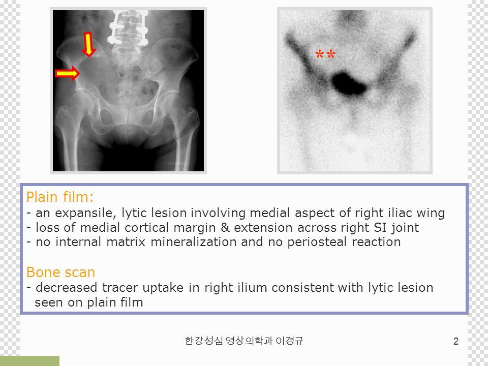 한강성심 영상의학과 이경규 2 ** Plain film: - an expansile, lytic lesion involving medial aspect of right iliac wing - loss of medial cortical margin & extension