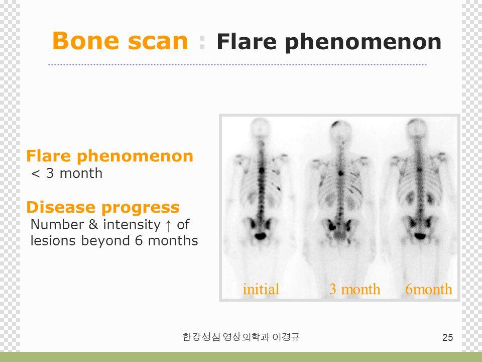한강성심 영상의학과 이경규 25 Bone scan : Flare phenomenon Flare phenomenon < 3 month Disease progress Number & intensity ↑ of lesions beyond 6 months 3 month6mon