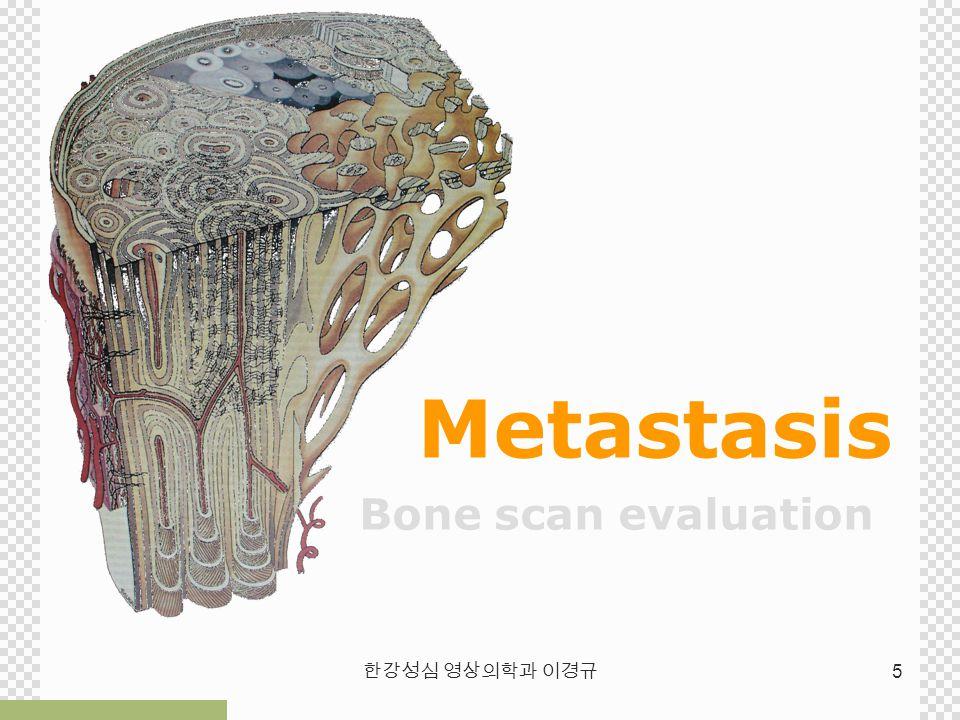 한강성심 영상의학과 이경규 5 Metastasis Bone scan evaluation