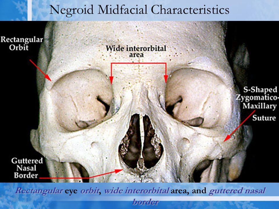 Negroid Midfacial Characteristics Rectangularorbitwideinterorbital guttered nasal border Rectangular eye orbit, wide interorbital area, and guttered nasal border