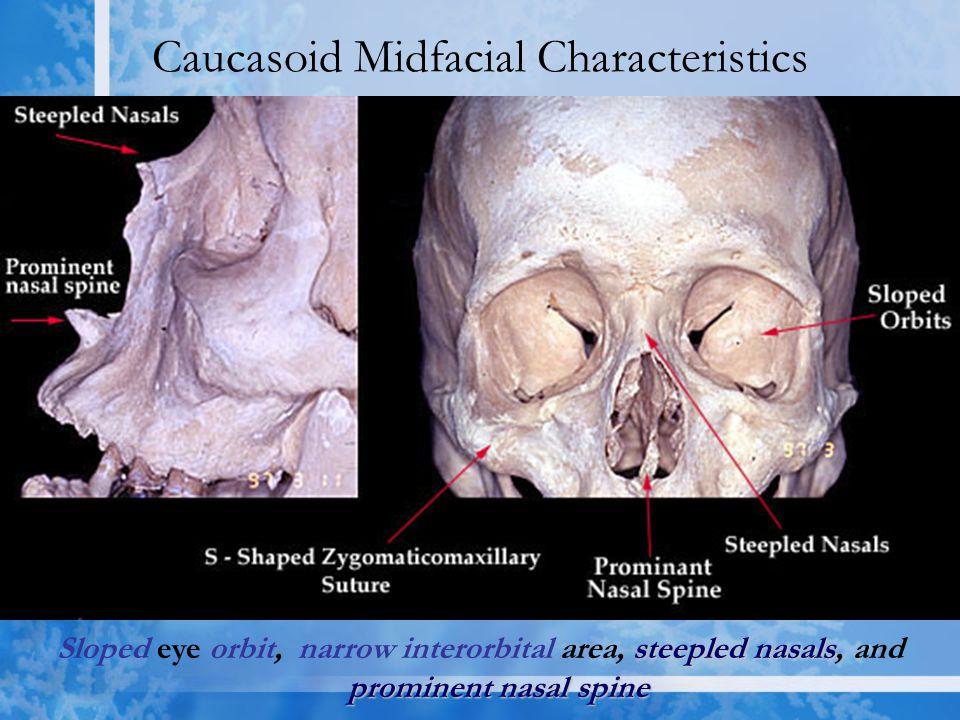 Caucasoid Midfacial Characteristics steeplednasals prominent nasal spine Sloped eye orbit, narrow interorbital area, steepled nasals, and prominent nasal spine