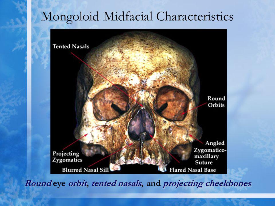 Mongoloid Midfacial Characteristics Roundorbittented nasalsprojecting cheekbones Round eye orbit, tented nasals, and projecting cheekbones