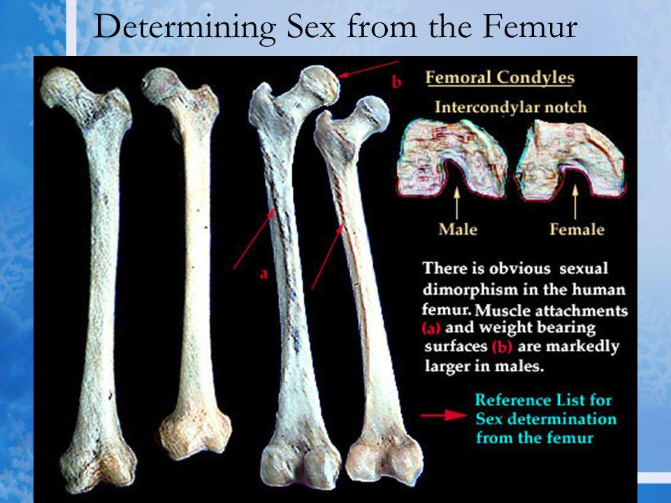 Determining Sex from the Femur