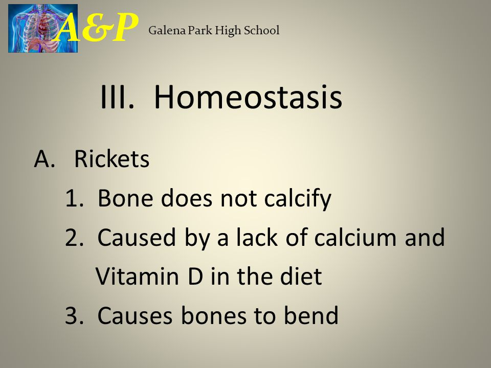 A.Rickets 1. Bone does not calcify 2. Caused by a lack of calcium and Vitamin D in the diet 3. Causes bones to bend Galena Park High School A&P III. H