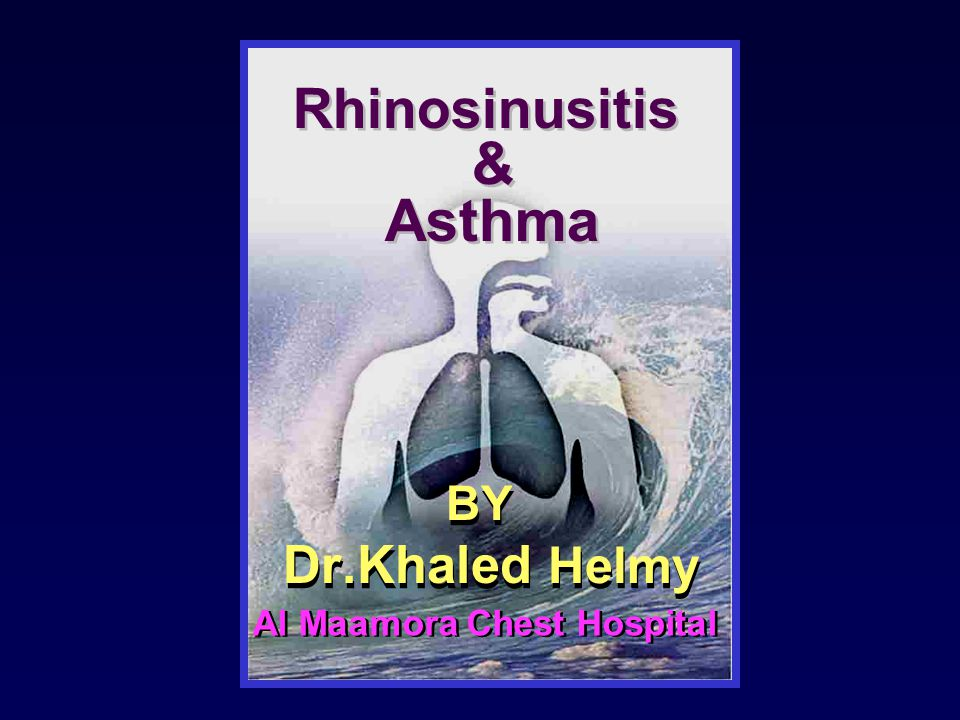 BY Dr.Khaled Helmy BY Dr.Khaled Helmy Rhinosinusitis & Asthma Rhinosinusitis & Asthma Al Maamora Chest Hospital