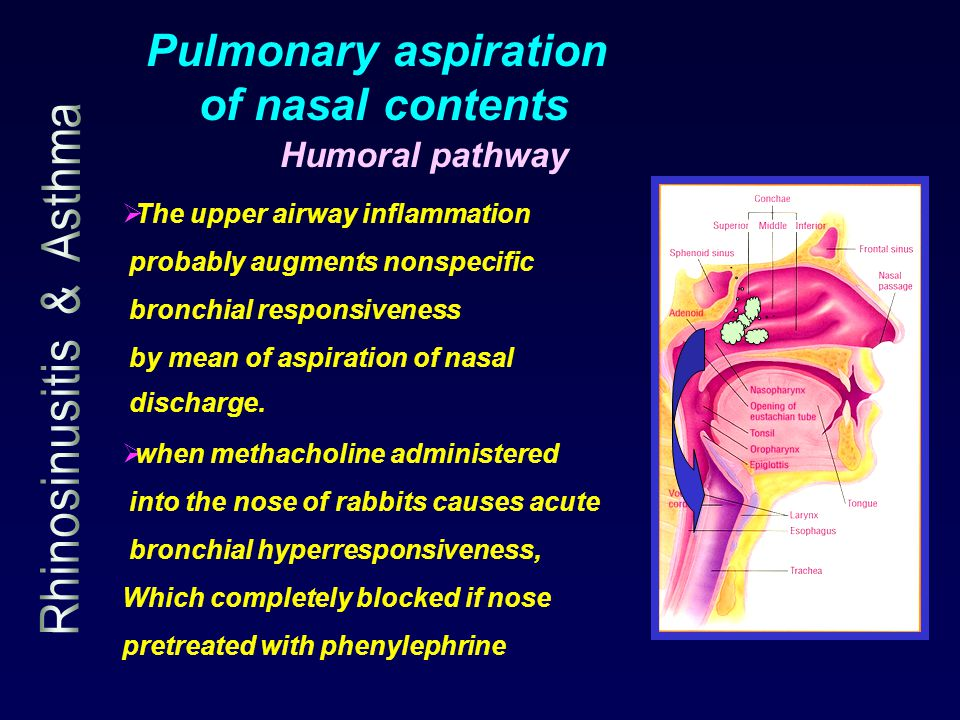 Pulmonary aspiration of nasal contents Humoral pathway  when methacholine administered into the nose of rabbits causes acute bronchial hyperresponsiveness, Which completely blocked if nose pretreated with phenylephrine  The upper airway inflammation probably augments nonspecific bronchial responsiveness by mean of aspiration of nasal discharge.