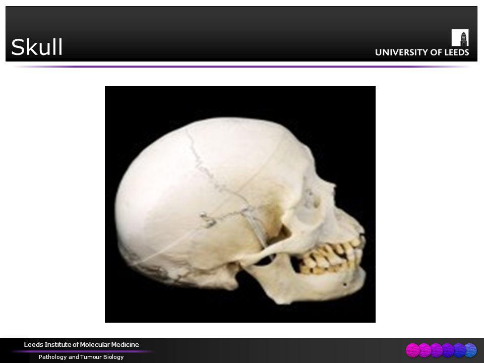 Leeds Institute of Molecular Medicine Pathology and Tumour Biology Skull