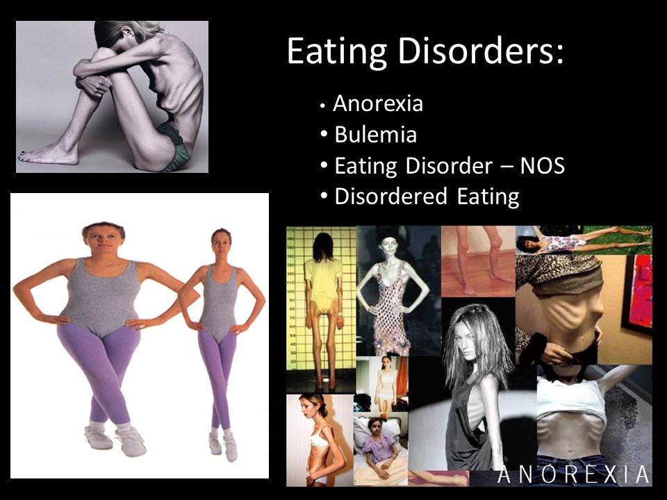 Eating Disorders: Anorexia Bulemia Eating Disorder – NOS Disordered Eating