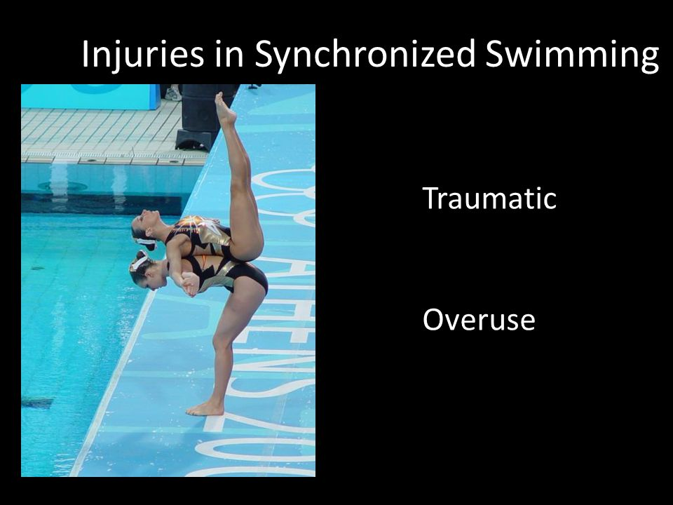 Other Back Injuries in Synchro Acute muscle tears Acute disc protrusion Sacro-iliac dysfunction Facet syndrome Whiplash