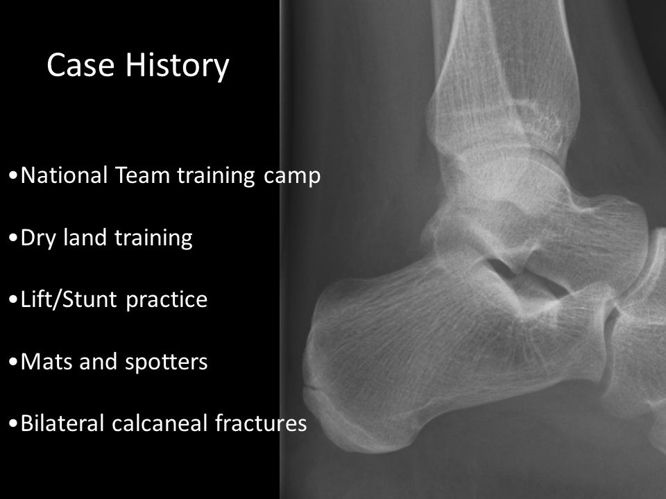Case History National Team training camp Dry land training Lift/Stunt practice Mats and spotters Bilateral calcaneal fractures