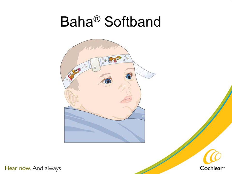 Baha ® Softband
