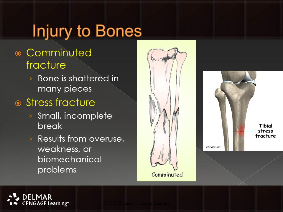 © 2010 Delmar, Cengage Learning 18 © 2011 Delmar, Cengage Learning  Comminuted fracture › Bone is shattered in many pieces  Stress fracture › Small, incomplete break › Results from overuse, weakness, or biomechanical problems