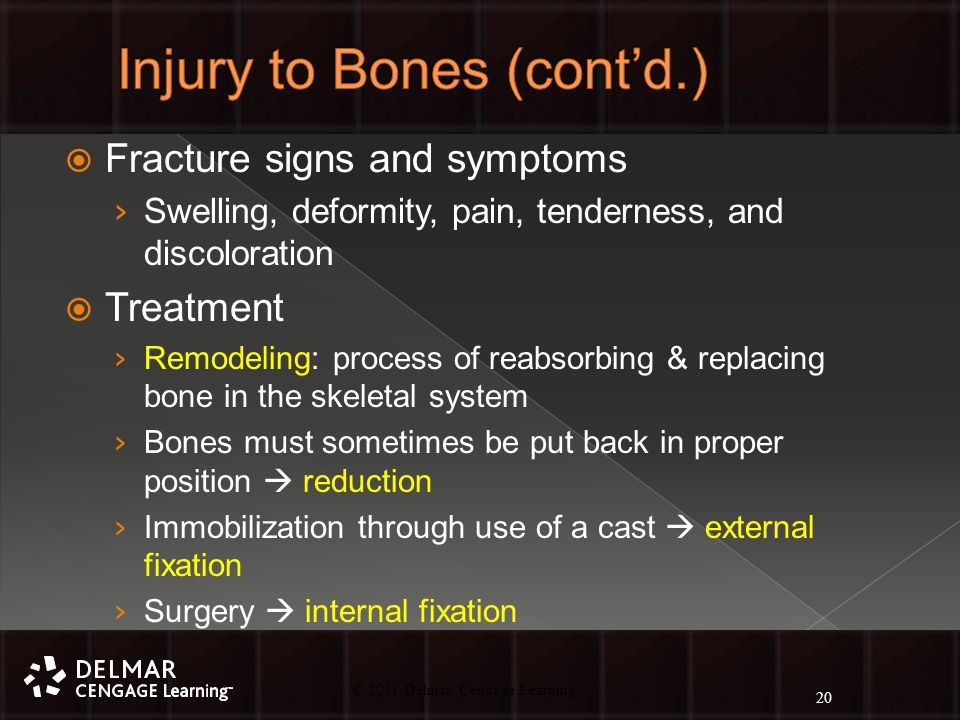 © 2010 Delmar, Cengage Learning 20 © 2011 Delmar, Cengage Learning  Fracture signs and symptoms › Swelling, deformity, pain, tenderness, and discoloration  Treatment › Remodeling: process of reabsorbing & replacing bone in the skeletal system › Bones must sometimes be put back in proper position  reduction › Immobilization through use of a cast  external fixation › Surgery  internal fixation 20