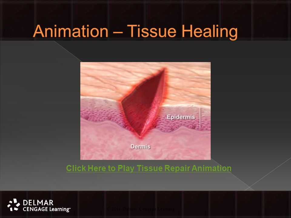 © 2010 Delmar, Cengage Learning 45 © 2011 Delmar, Cengage Learning Click Here to Play Tissue Repair Animation