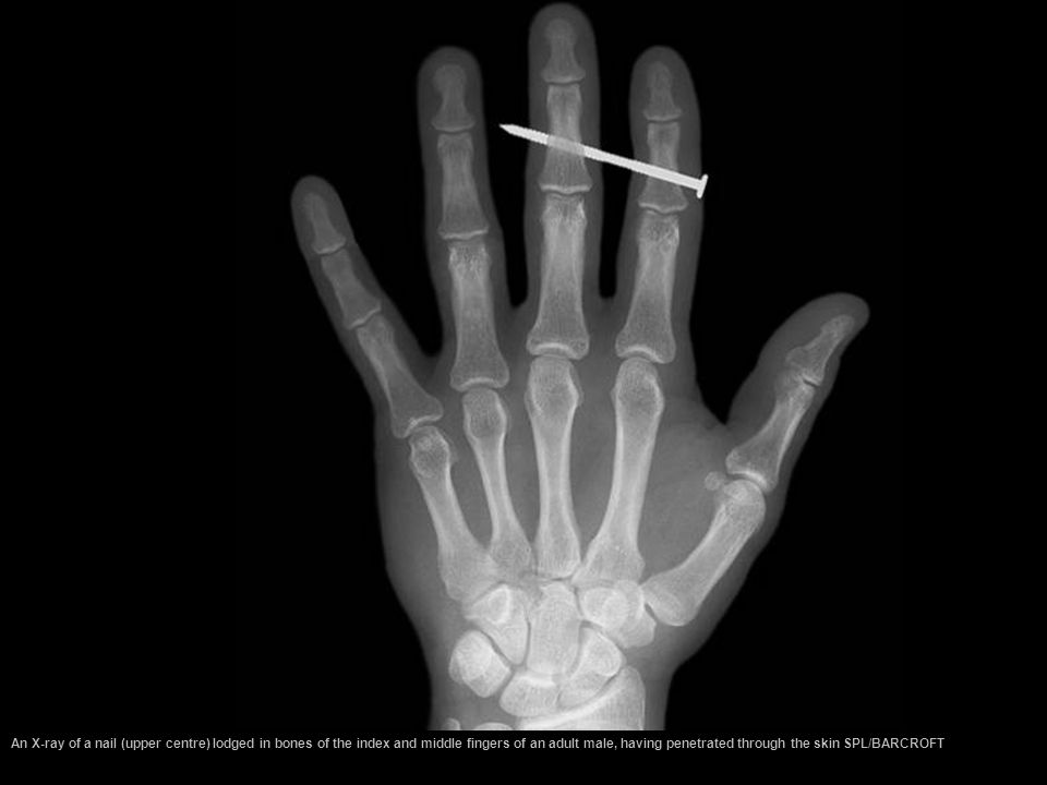 An X-ray of a nail (upper centre) lodged in bones of the index and middle fingers of an adult male, having penetrated through the skin SPL/BARCROFT